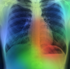 missed lung nodules found with AI enhanced peer review